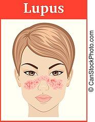 Illustration of Lupus - Illustration symptoms of Systemic ...