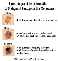 Illustration of Malignant Lentigo - Three stages of...