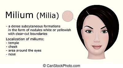 Illustration of Milium