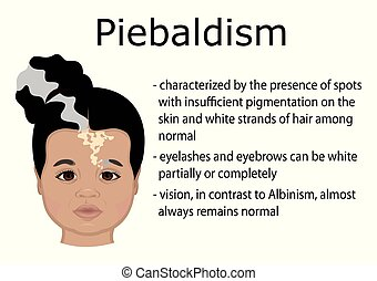 Illustration of Piebaldism