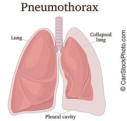 Illustration of the lungs with symptoms of pneumothorax