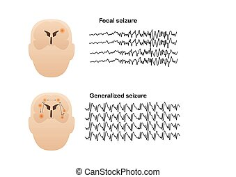 Vector illustration of seizure types demonstrating by onset and brain waves. Focal seizure and generalized seizure. Electroencephalograhy or EEG of seizures.