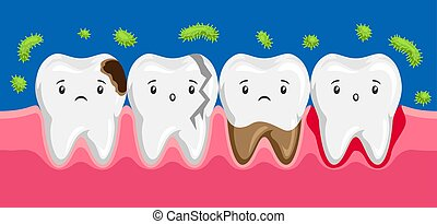 Illustration of sick teeth in oral cavity. Children...