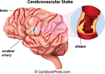 Cerebrovascular Stroke - Illustration of the Cerebrovascular...