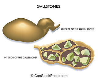 gallstones - illustration of the section of the gallbladder ...