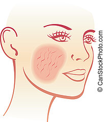 couperose - illustration of the symptoms of  couperose