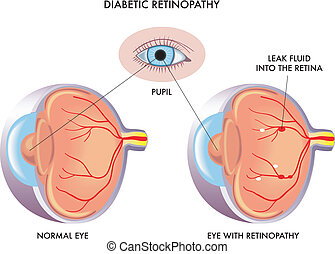 Illustration of the symptoms of diabetic retinopathy