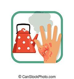 Illustration showing third degree burn of hand. Severe burns...