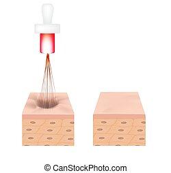 illustration, structure, acne., acné, laser, scars., vecteur, treatment., isolé, arrière-plan., anatomique, atrophic, cicatrice, peau