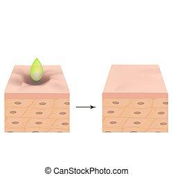 illustration, structure, peler, acne., acné, scars., vecteur, treatment., isolé, arrière-plan., acide, anatomique, atrophic, cicatrice, peau