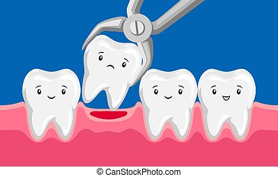 Illustration tooth is removed by forceps in oral cavity. Children dentistry characters. Kawaii facial expressions.