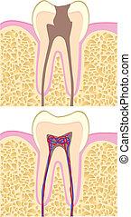 illustrazione, dente