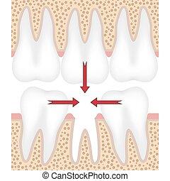 illustrazione, tooth., mancante