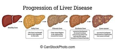 ilustração, dano, fases, fígado