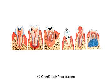 ilustração, dentes