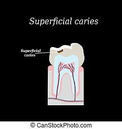 ilustración, diente, caries., vector, fondo negro, hogar