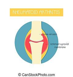 ilustración, rheumatoid, hueso, arthritis.
