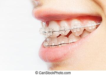image, clair, dents, côté, bretelles, vue