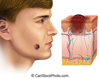 melanoma on the face - Image of a man with a melanoma on the...