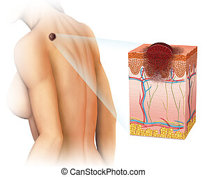 melanoma on the back - Image of a woman with a melanoma on...