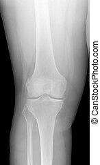 Image Of Knee X-Ray. Detecting Radiographic Knee Osteoarthritis.