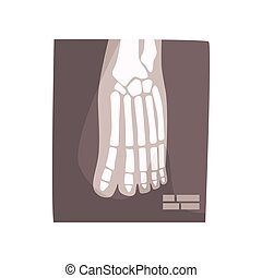 imagem, ilustração, vetorial, pé humano, x, caricatura, raio