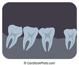 imagen, radiografía, humano, monocromo, vista., style., radiología, monitor, radiographic, intraoral, dentistry., plano, imagen, dental, ilustración, caricatura, gingiva., médico, o, vector, dientes, lado, radiografía