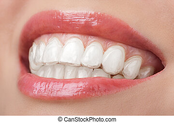 imbiancando, dentale, vassoio, sorriso, denti