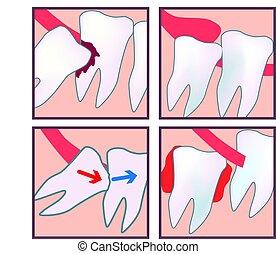 impacted, wijsheid, teeth