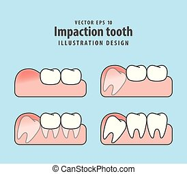 Impaction tooth illustration vector on blue background. Dental concept.