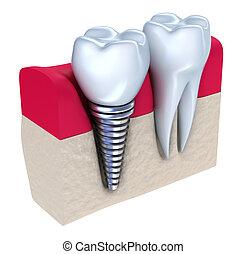 impianto, dentale