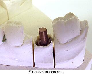 Implant abutment