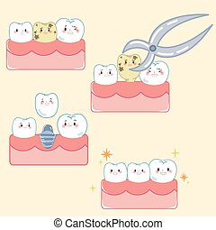 implant, concept, dent