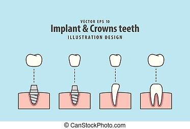 Implant & Crowns teeth illustration vector on blue background. Dental concept.