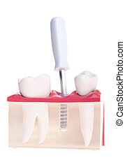 Implant dental model - dental model with implant placement...