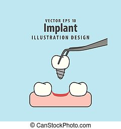 Implant illustration vector on blue background. Dental concept.
