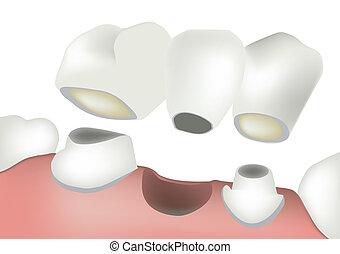 implant teeth - dental bridge