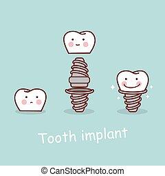 implantação, dental, conceito, caricatura, dente