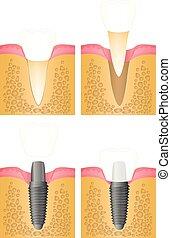 implantación, diente