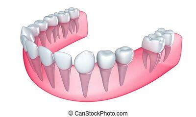 implantat, gleichfalls, eingebettet, in, der, zahnfleisch