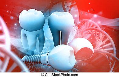 implantat, menschliche , zahn