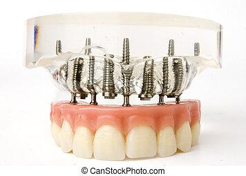 implantat, modell, tänder