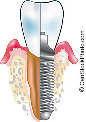 implantat, tand