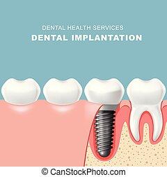 implantation, dentaire, -, gencive, dent, dents, inséré, implantat