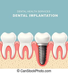 implantation, dentaire, -, gencive, dents, implant, rang