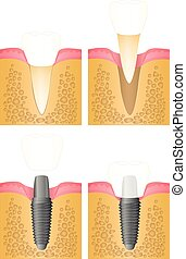 implantation of the tooth - Dental implant, steps for...