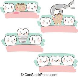 implante, dente