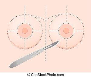 implante, pecho, frontview, silicona