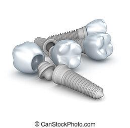 implants, dentaal, vrijstaand, kroontjes, spelden, witte