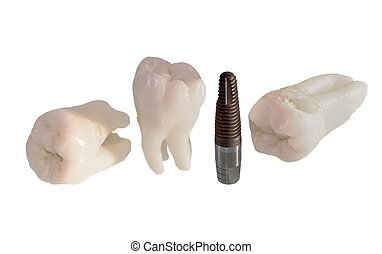 implants, dents